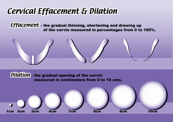 The key differences between cervical dilation effacement and