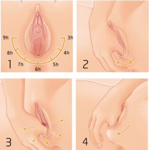 Perineal Massage How To Graphic
